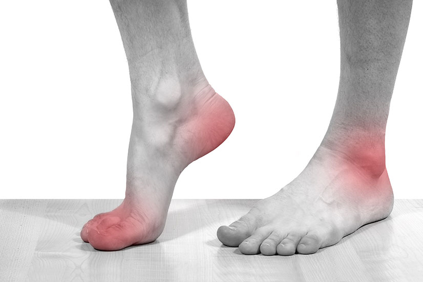 Acupuncture and Foot Pain in Parkland Florida