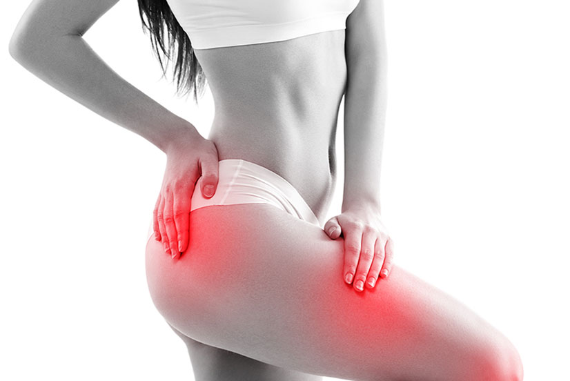 Hip Pain and Acupuncture in Parkland Florida