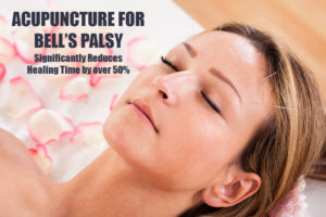 Acupuncture for Bell's Palsy in Plantation and Ft. Lauderdale Florida